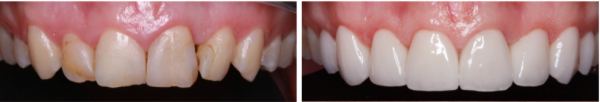 Veneers and Smile Makeover